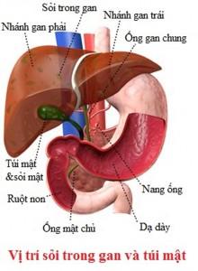 bệnh sỏi gan