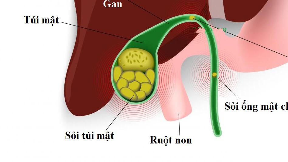 Sỏi bùn túi mật: Nguyên nhân, triệu chứng và cách chữa trị.