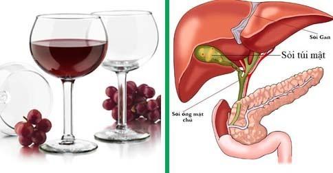 Giảm nguy cơ bị sỏi mật bằng rượu vang