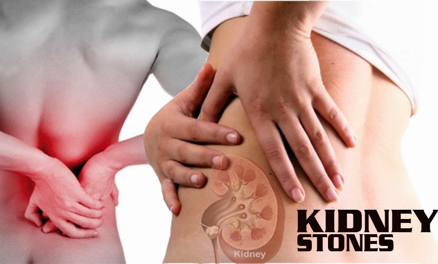 Sỏi thận thường có những triệu chứng âm thầm và kéo dài