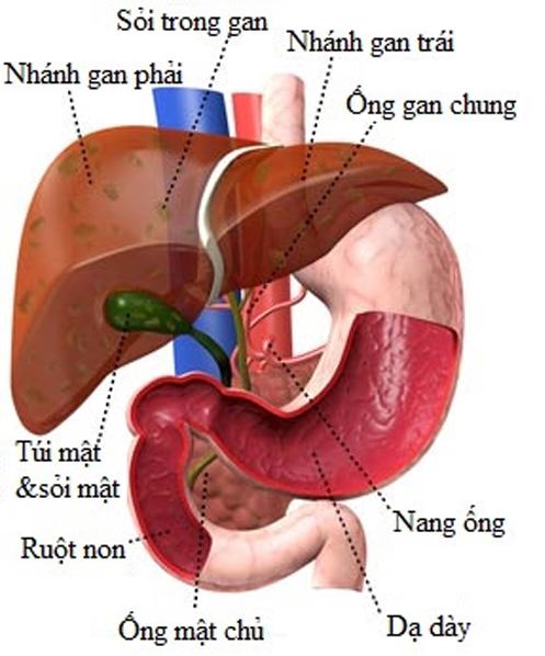 Bệnh sỏi trong gan và cách điều trị