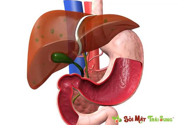 sỏi đường mật trong gan