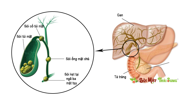 ngừa sỏi mật tái phát