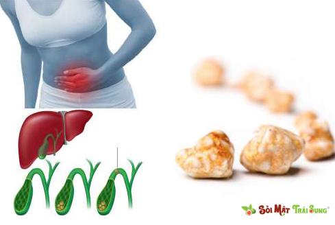 Triệu chứng đau sỏi mật và cách làm giảm cơn đau sỏi mật